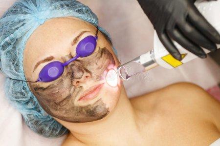 Laser Behandlung